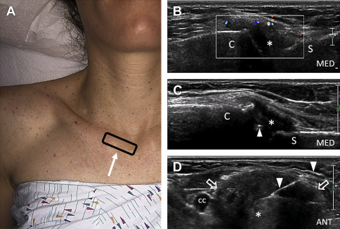 Ultrasound-Guided Interventional Procedures About the Shoulder - Physical Medicine and